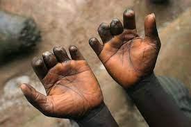 Lèpre: 200 nouveaux cas enregistrés au Sénégal en 2020 dans 79 districts sanitaires